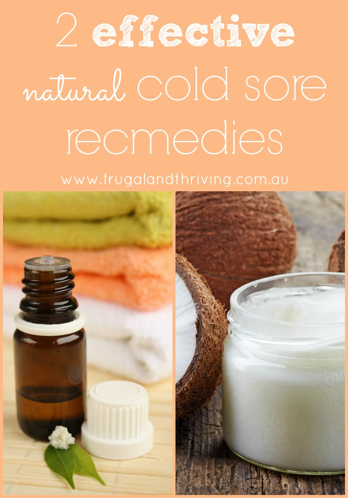 Two Highly Effective Natural Cold Sore Remedies To Try